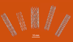 3d-printed nitinol stents in various sizes