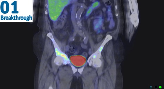 """A PET scan shows metastasised prostate cancer cells glowing in red in the shoulder and pelvis from the specially designed theranostic """"homing missiles""""."""